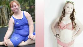 Redefining Beauty Standards: One Girl's Message Of Acceptance